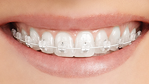 Wentzville Orthodontic Braces Metal Ceramic Invisalign